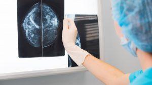 mamografía en Toledo - resultados